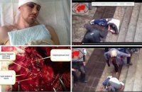 Преподавателю ХАИ, которого избили сепаратисты, требуется помощь