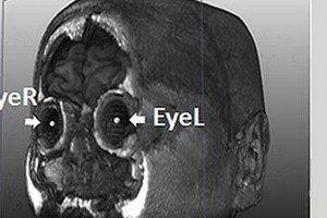 Ученые обнаружили гены, отвечающие за форму лица