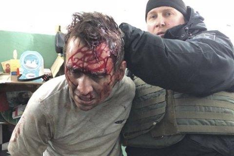 Злоумышленник, который вчера захватил заложников в Харькове, имел проблемы с психикой, - Шкиряк