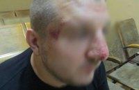 Российские пограничники высадили с поезда и избили украинца, направлявшегося в РФ