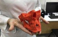 У Національному медуніверситеті відкрили стоматологічну лабораторію з 3D-принтерами