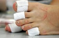 Липосакция пальцев ног бьет рекорды по популярности