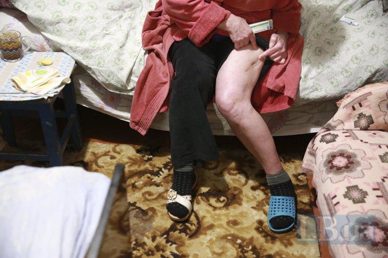 Люба показывает шрамы, оставшиеся у неё после операции на ногах