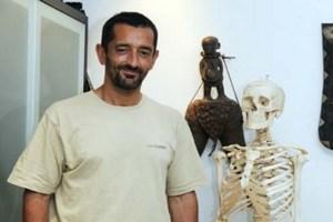 В Испании провели первую в мире пересадку ног