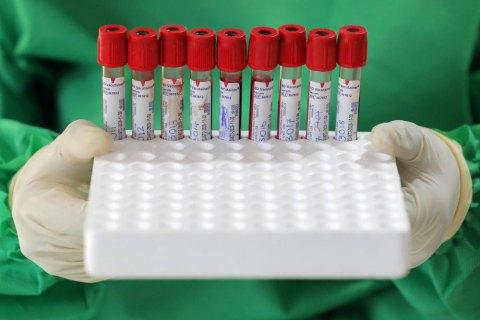 В Україні за добу зафіксували 836 нових випадків COVID-19