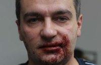 Милиция завела уголовное дело по факту избиения журналиста в Мариинском парке