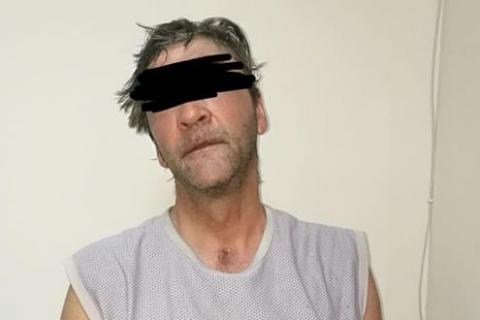 ВОдессе задержали мерзавца, облившего 12-летнего ребенка кислотой