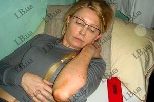 Тюремщики признают голодовку Тимошенко