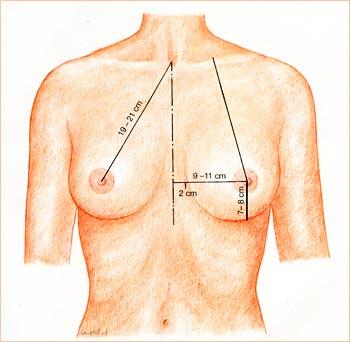 Схема увеличения груди