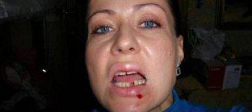 Известный режиссер избил свою сестру