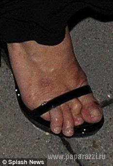 Пальцы Кейт Мосс выглядят не слишком ухоженными
