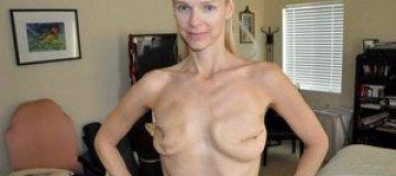 Модель, удалившая грудь как Джоли, снялась топлесс