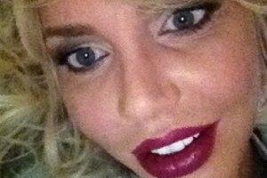 Маша Малиновская вернула себе прежнюю форму губ