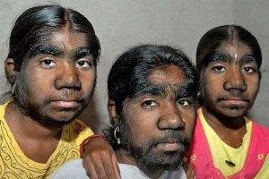 """В Индии нашли уникальную семью сестер-""""оборотней"""""""