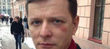 Олегу Ляшко подбили глаз