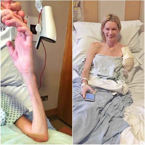 Оливия Джексон до и после ампутации
