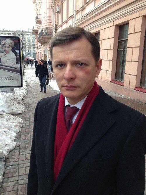 Олегу Ляшко поставили фингал