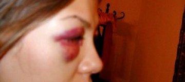 Шокирующие фото Виктории Бони попали в Интернет