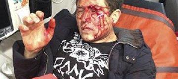 Андрея Джеджулу жестоко избили арматурой