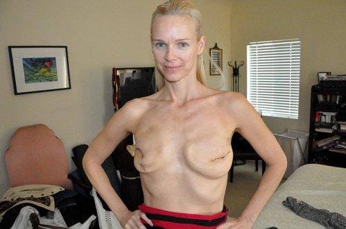 Клэр Фразу после операции по удалению молочных желез
