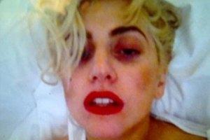 Леди Гага все еще не оправилась от сотрясения мозга
