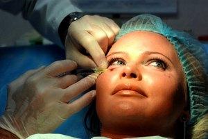 Дана Борисова сделала пластику лица