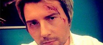 Басков разбил голову на свадьбе