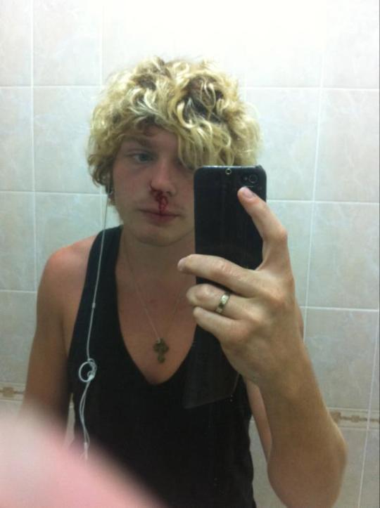 Кривошапко похвастался кровоточащим носом