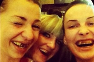 Даша Астафьева шокировала почерневшими зубами