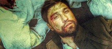 Дима Билан шокировал окровавленным лицом