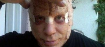 Микки Рурк показал фото после пластической операции