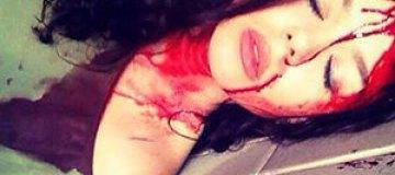 Алина Гросу шокировала окровавленным лицом