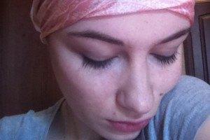 Анастасия Приходько лишилась волос